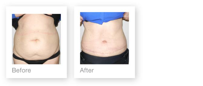 David Oliver Abdominoplasty & Liposuction surgery result before and after May 2014
