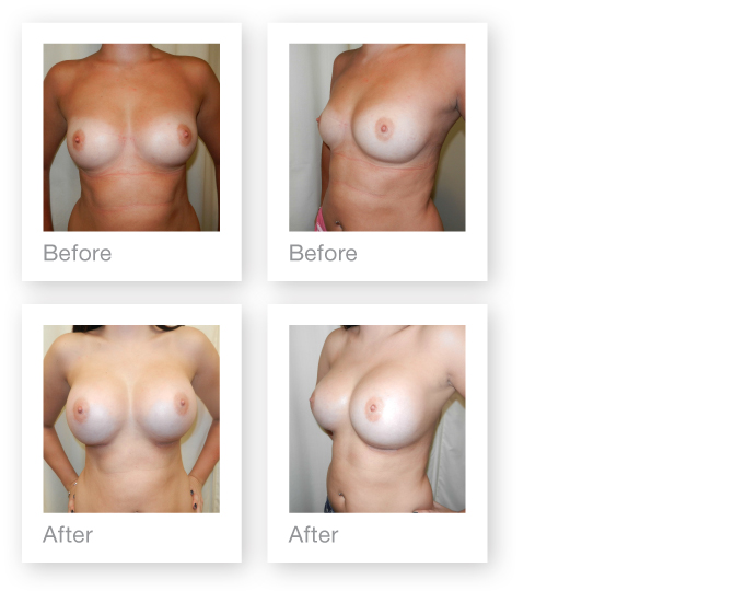David Oliver Plastic Surgeon - Breast Augmentation Surgery before & after photos - September 2013