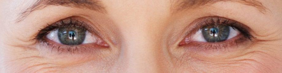 Considering Blepharoplasty (eyelid) surgery?