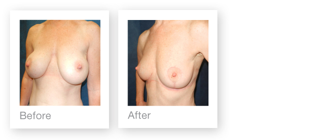 Removal of breast implants and immediate Mastopexy (Breast-Uplift) by plastic surgeon David Oliver