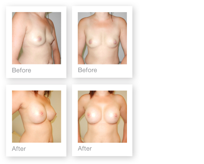 David Oliver Breast Augmentation Breast Surgery Result before & after November 2014