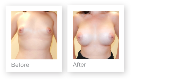 David Oliver Breast Augmentation before & after breast surgery result December 2014
