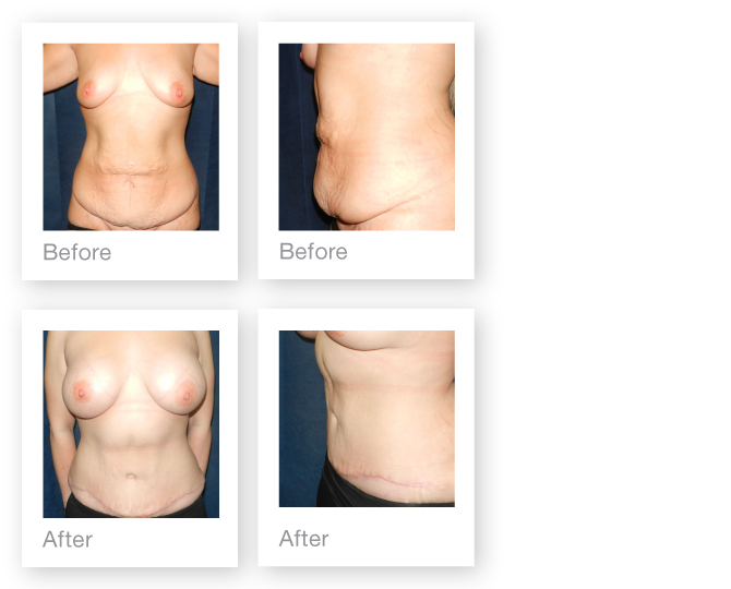 David-Oliver-Breast-Abdominoplasty-with-Liposuction-and-Breast-Augmentation-result-January-2015