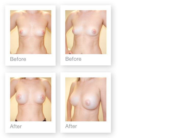 David-Oliver-Breast-Augmentation-results-Allergan-325cc-Dual-Plane-sub-muscular-technique-before-and-after