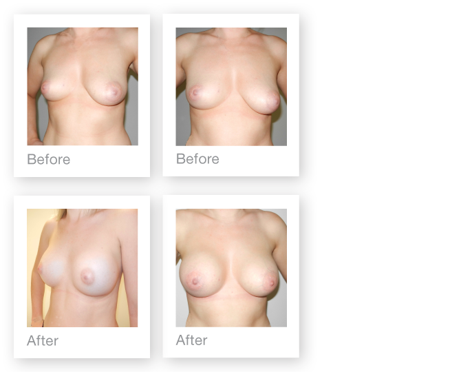David-Oliver-Differential-Breast-Augmentation-for-breast-asymmetry-avoiding-a-mastopexy-(breast-uplift)-on-the-left-side-before-&-after-result