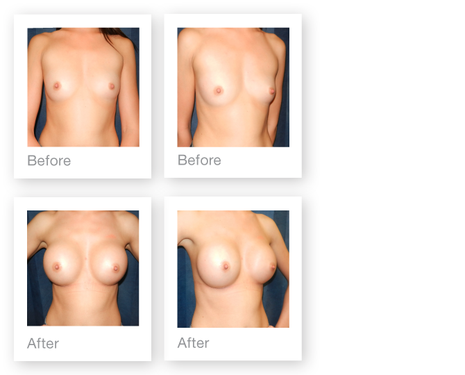 David Oliver cosmetic surgeon breast augmentation Guernsey age 26 before & after results March