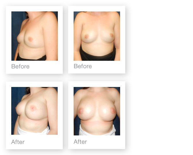 David Oliver cosmetic surgeon breast augmentation Guernsey before & after results March