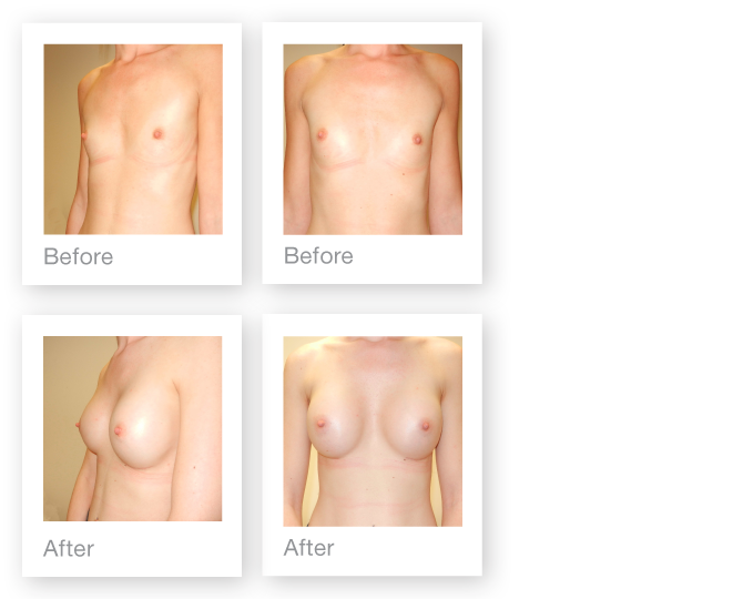 David Oliver cosmetic surgeon breast augmentation Torquay Devon age 27 before & after results March