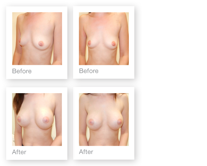 David Oliver before after surgery Breast Augmentation nagor implants