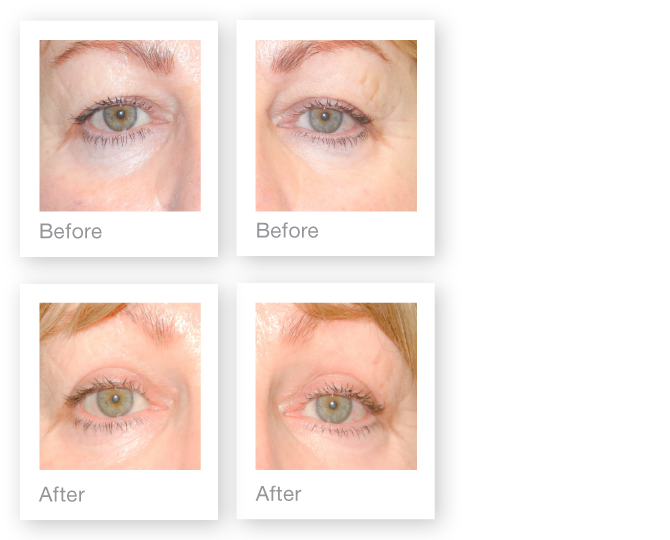 Blepharoplasty-eyelid-surgery-before-after-David-Oliver-Plastic-Surgeon-May-2015