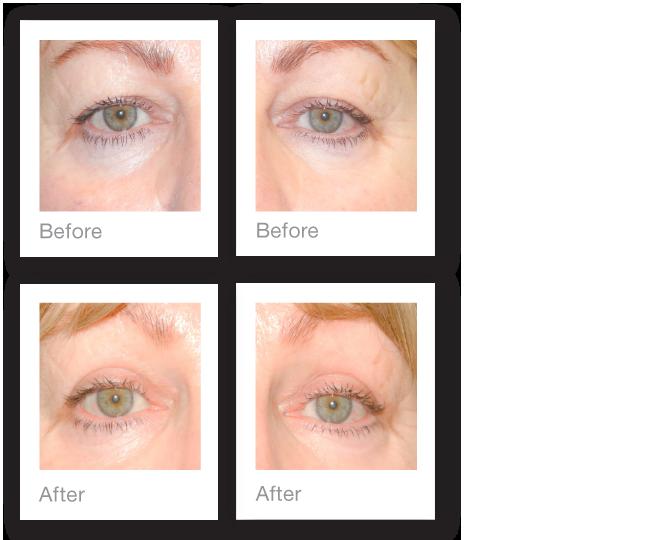 Blepharoplasty-eyelid-surgery-before-after-David-Oliver-Plastic-Surgeon-May-2015