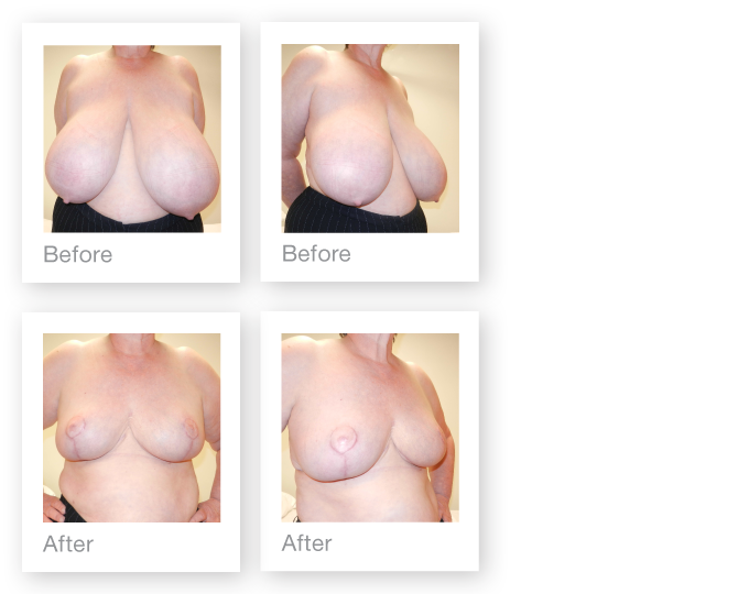 Breast Reduction May 2015 before & after David Oliver Exeter plastic Surgeon
