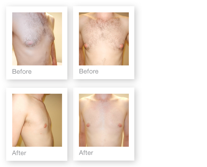David Oliver Plastic Surgeon Gynaecomastia surgery before & after July 2015