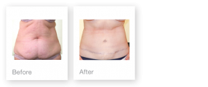 David Oliver Abdominoplasty surgery before & after August 2015