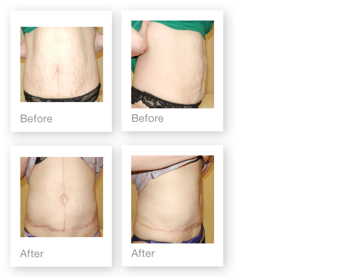 David Oliver Fleurs-de-Lys abdominoplasty surgery before & after Sept 2015