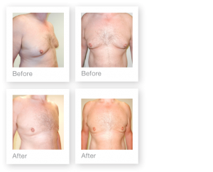 David Oliver Gynaecomastia surgery before & after September 2015