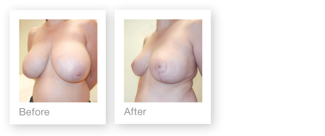 David Oliver breast reduction surgery before & after Sept 2015