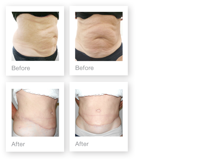David Oliver abdominoplasty surgery before & after October