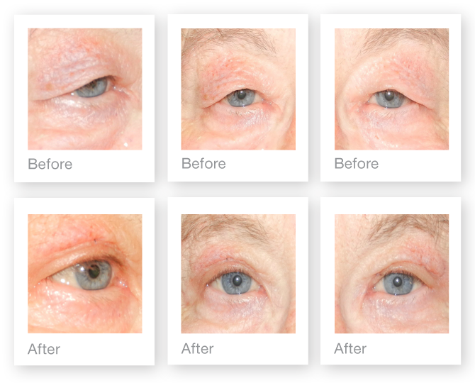 David Oliver blepharoplasty surgery before & after October 2015