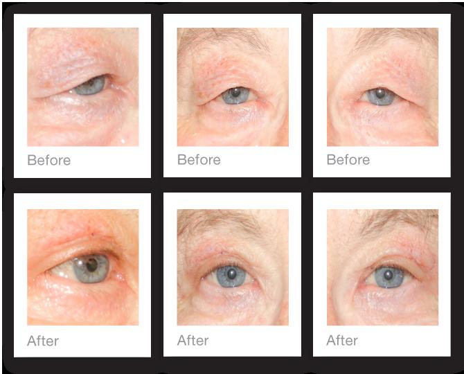 David Oliver blepharoplasty surgery before & after October 2015