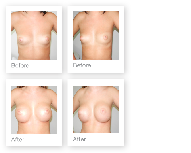 David Oliver Breast augmentation surgery before & after results November 2015