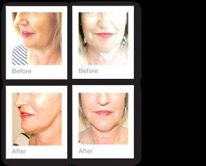 David Oliver Facelift surgery before & after results November 2015