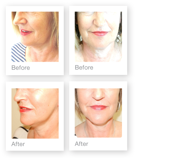 David Oliver Facelift surgery before & after results November 2015