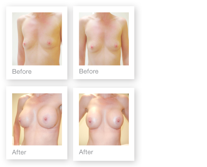 David Oliver breast augmentation surgery before & after results December 2015