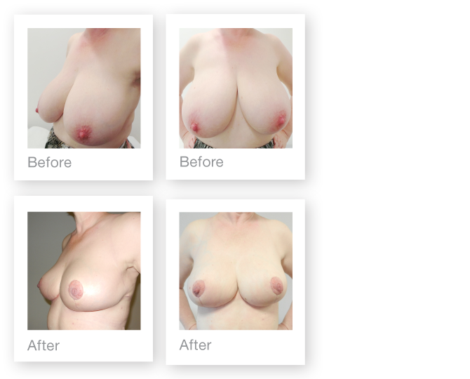 David Oliver breast reduction surgery before & after results December 2015