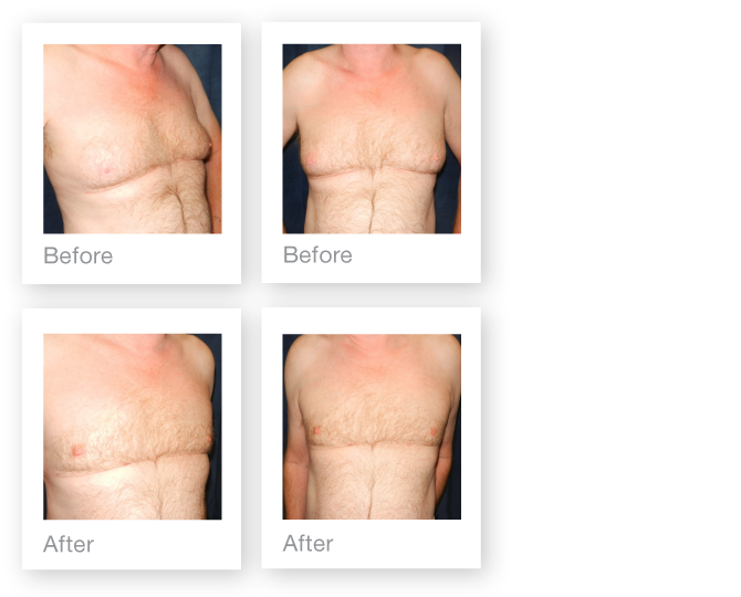 David Oliver liposuction Gynaecomastia surgery before & after results December 2015
