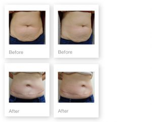 David Oliver Cosmetic Surgeon Abdominoplasty Liposuction surgery before & after June 2016
