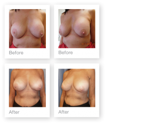 David Oliver cosmetic surgeon breast implant exchange surgery before & after