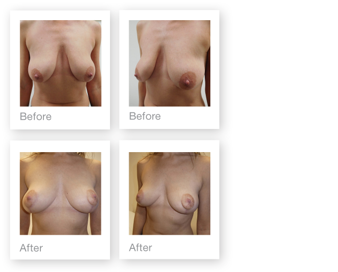 Breast mastopexy surgery before & after by David Oliver, Cosmetic surgery Devon - November 2016