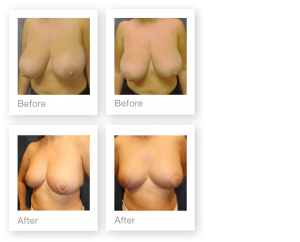 Breast reduction surgery before & after by David Oliver, Cosmetic surgery Devon - November 2016