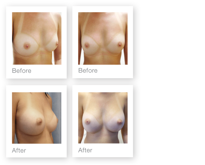 Breast augmentation surgery before & after David Oliver cosmetic surgeon Nov 2016
