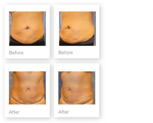David Oliver Abdominoplasty & liposuction surgery before & after Jan 2017