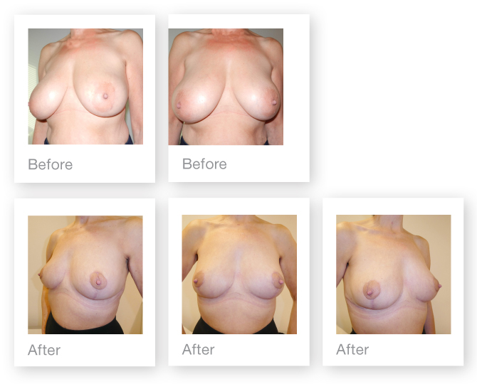 David Oliver breast surgery Bi lateral Breast Reduction before & after Feb 2017
