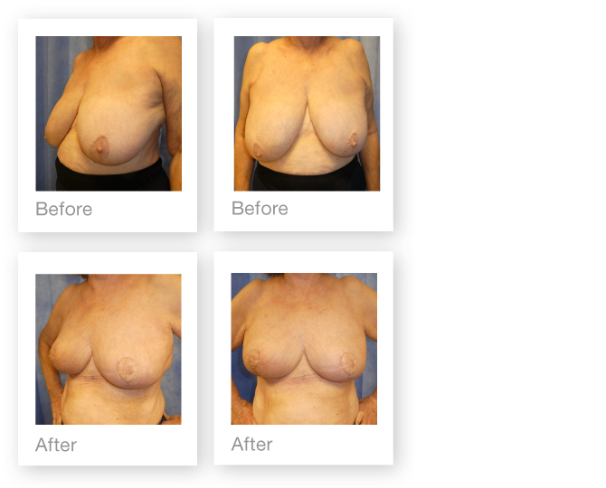 David Oliver cosmetic surgery Bi lateral Breast Reduction before & after Feb 2017
