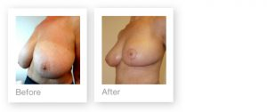 David Oliver Bi-lateral Breast Reduction before & after surgery March 2017
