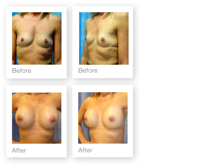 David Oliver Bi lateral Breast Augmentation surgery before & after April 2017