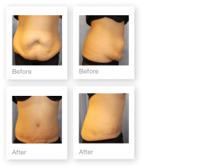 David Oliver Abdominoplasty surgery before & after May 2017