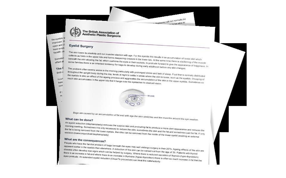 BAAPS blepharoplasty information download from David Oliver Eyelid Surgeon