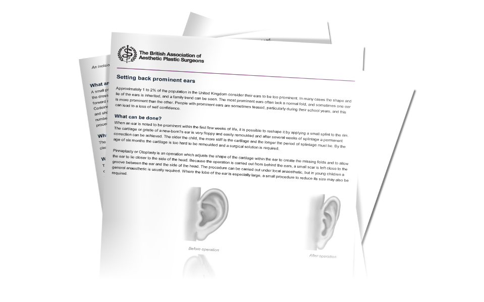 BAAPS Ear surgery information download from David Oliver Otoplasty Surgeon