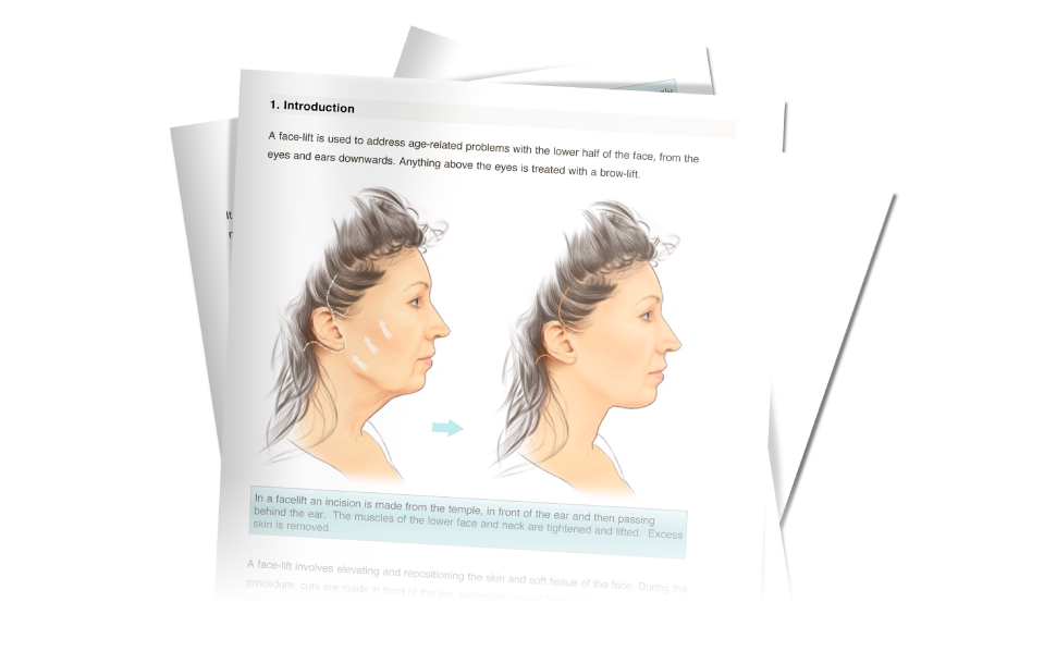 BAPRAS facelift surgery information download from David Oliver cosmetic Surgeon