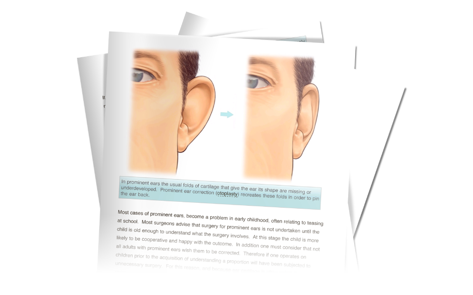 BAPRAS ear surgery information download from David Oliver otoplasty Surgeon