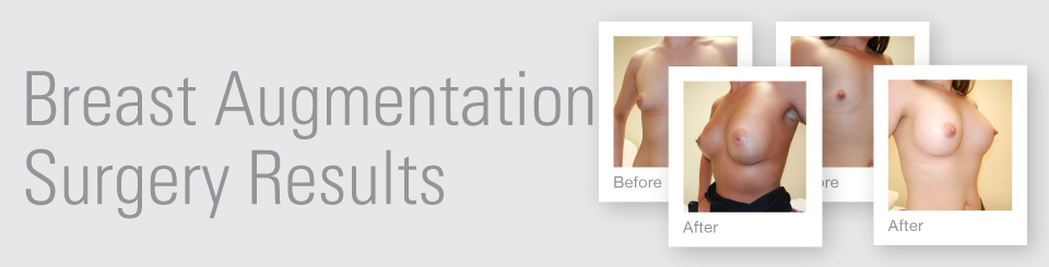 Breast Augmentation before after surgery results Exeter Torbay Devon Guernsey by David Oliver expert Breast Surgeon