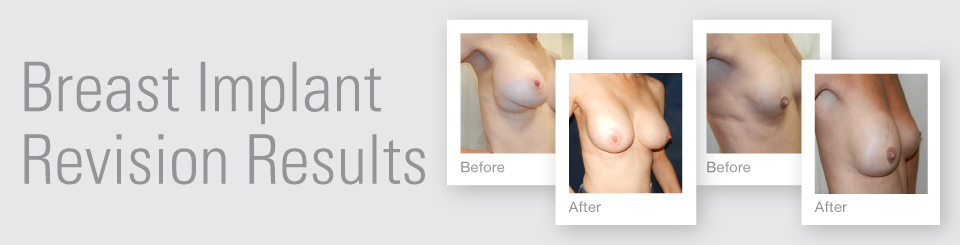 Breast Implant revision before after surgery results Exeter Torbay Devon Guernsey by David Oliver expert Breast Surgeon