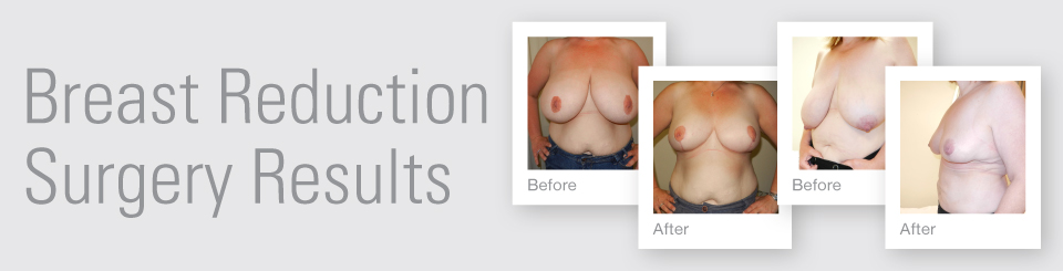 Breast Reduction before after surgery results Exeter Torbay Devon Guernsey by David Oliver expert Breast Surgeon
