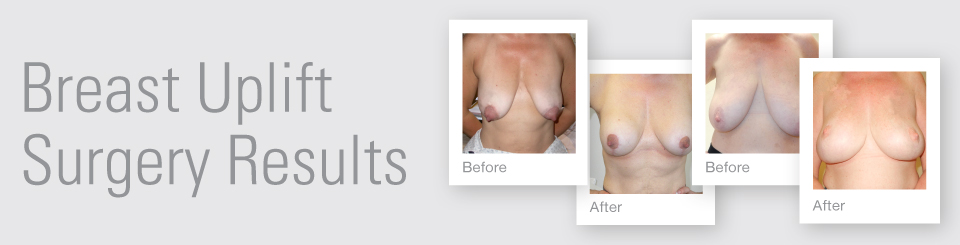 Breast Uplift before after surgery results Exeter Torbay Devon Guernsey by David Oliver expert Breast Surgeon