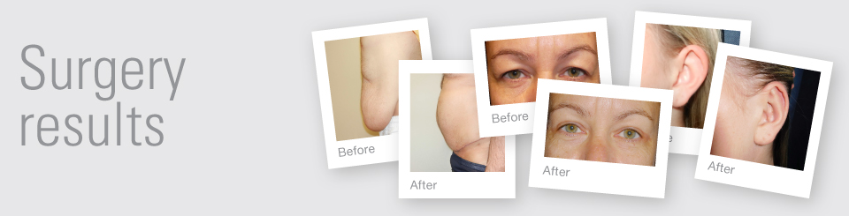 Cosmetic Surgery before & after results Exeter Torbay Devon Guernsey by David Oliver expert Cosmetic Surgeon